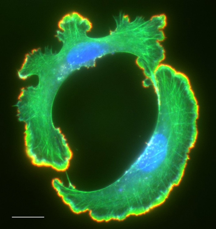 Actin Filaments and Free Filament Ends in a Cancer Cell