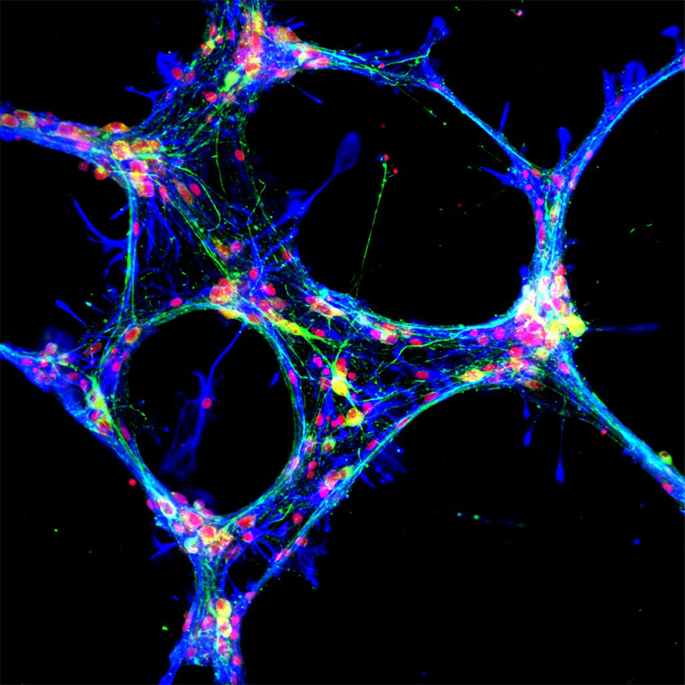 Network morphology and neuron-glia relationships of 20 days old hippocampal cells cultured on a cysteine terminated engulfment-promoting peptide (EPP).